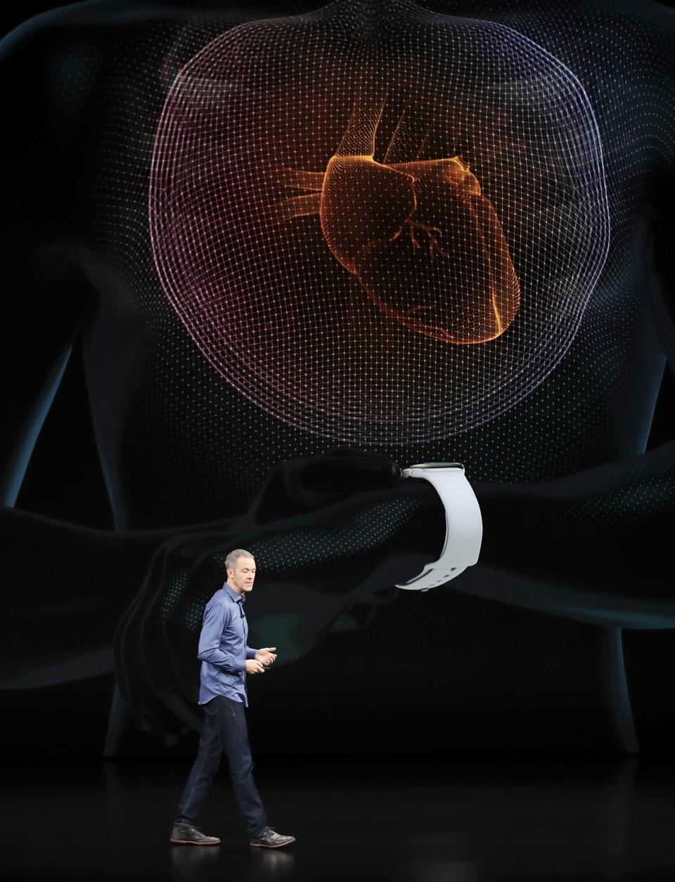 5 Reasons Why You Should Be Excited About Apple Watch 4's ECG Sensor