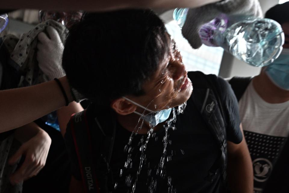 A protester has water poured on his face after being exposed to tear gas.