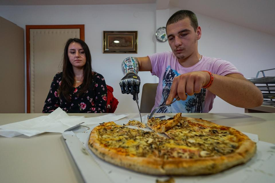 Bosnian youth hold on to life with his prosthetic hand