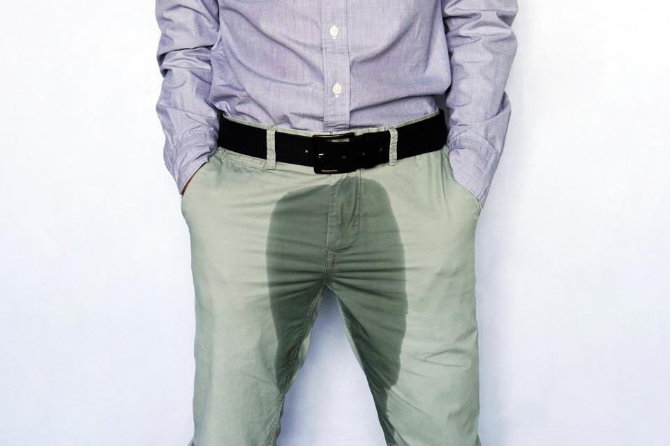 Young man in light trousers with wet stain from urine