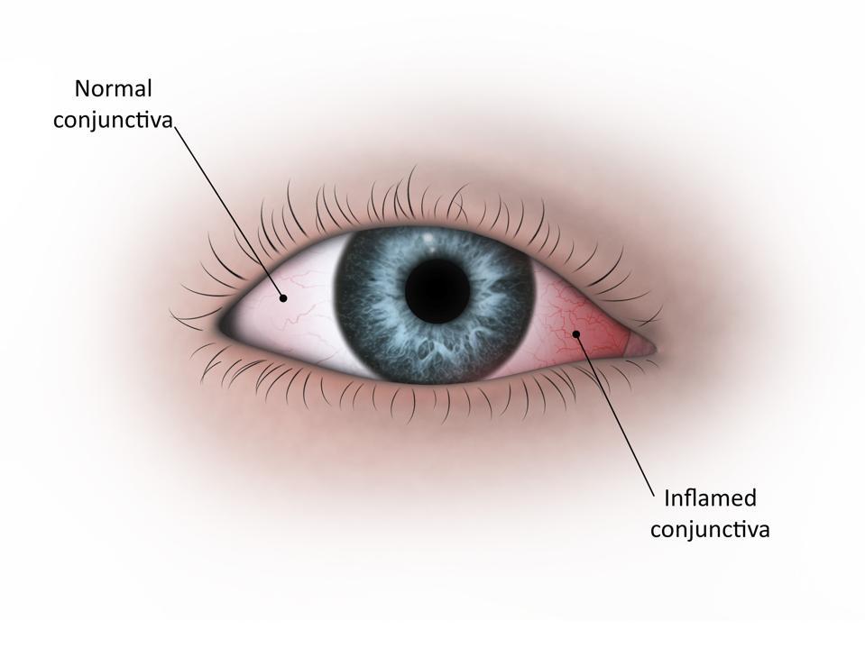 Medical illustration of conjunctivitis in the human eye.