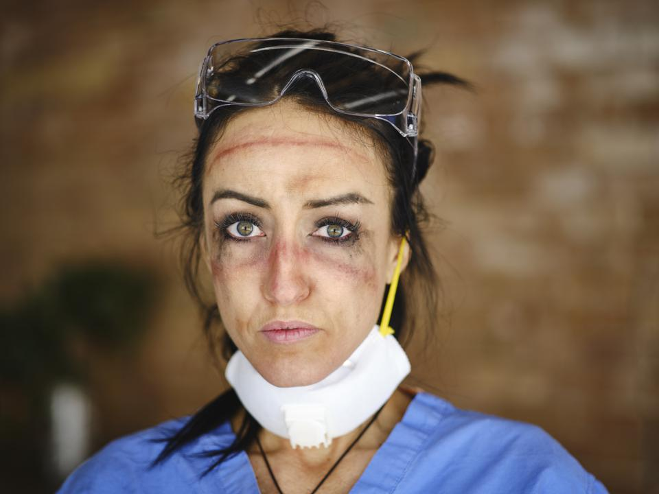 Healthcare Worker after hours of wearing N95 mask