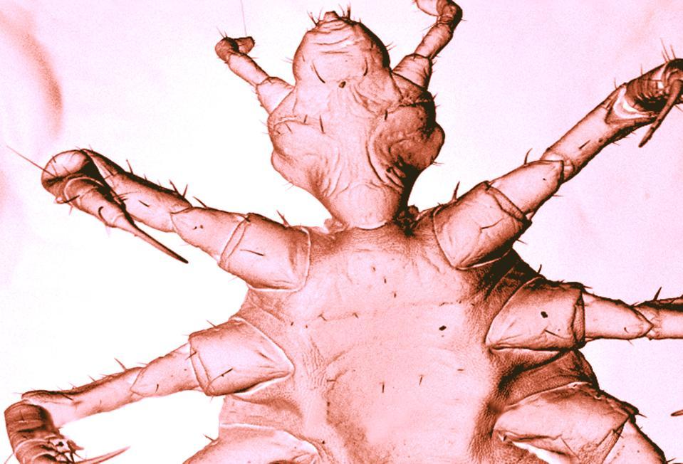 Pidocchio del corpo umano, febbre da trincea sem