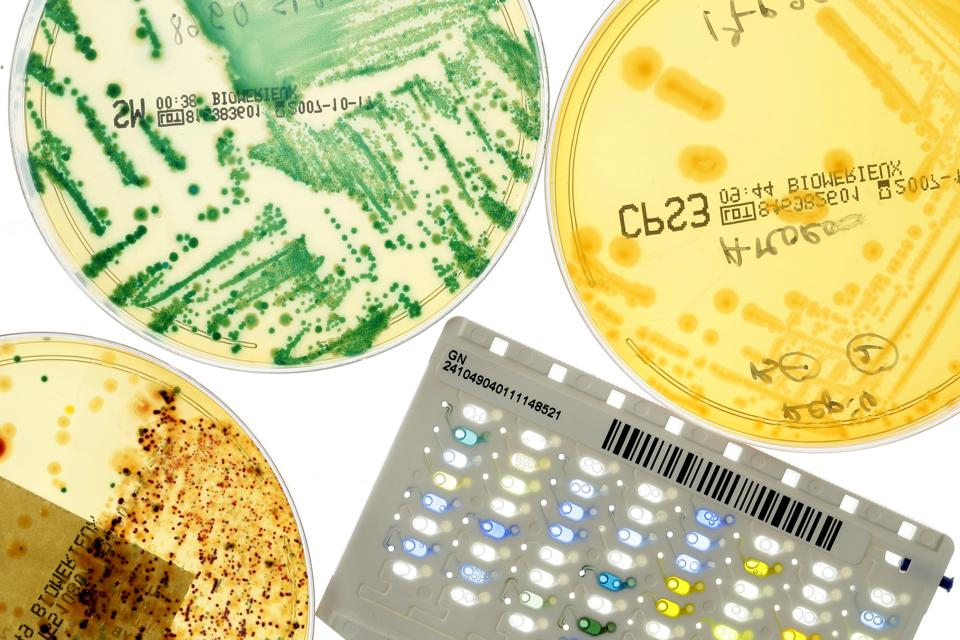 A Bacteriological Identification Plate Enabling The Identification Of The Bacterium In The Sample Blood, Urine And Saliva And The Execution Of The Antimicrobial Susceptibility Test By An Automaton.