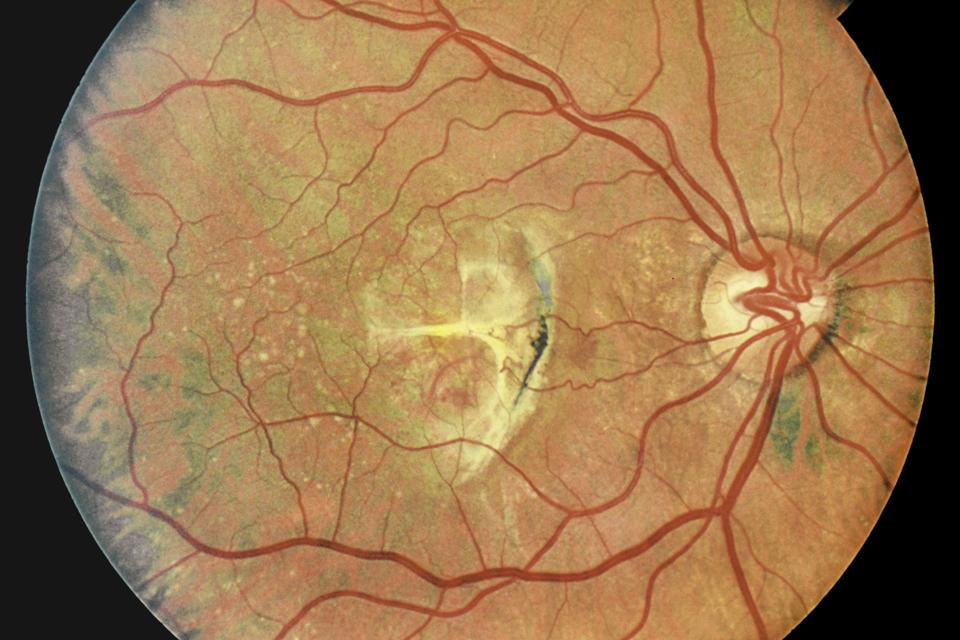 New Study Adds Concern That Medication To Treat Painful Bladder Condition Linked To Vision-Threatening Eye Condition
