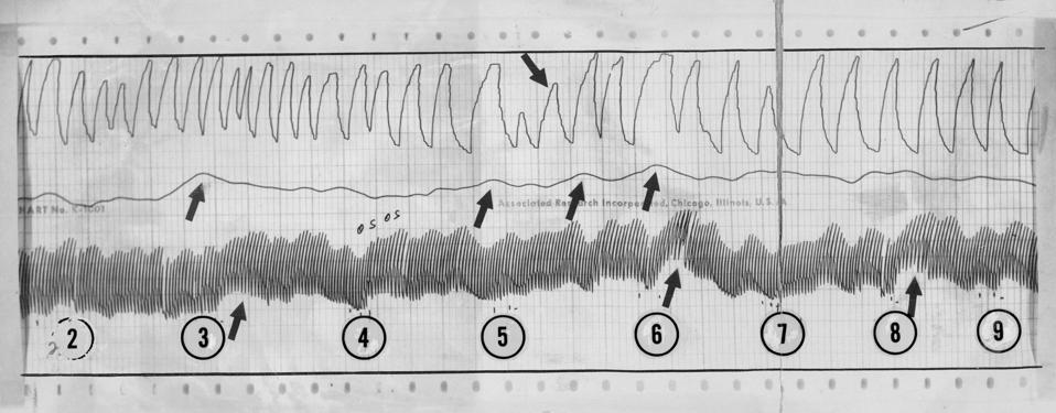 1968, DEC 8 1968; Reproduction of A Section of A Polygraph (Lie Detector) Chart