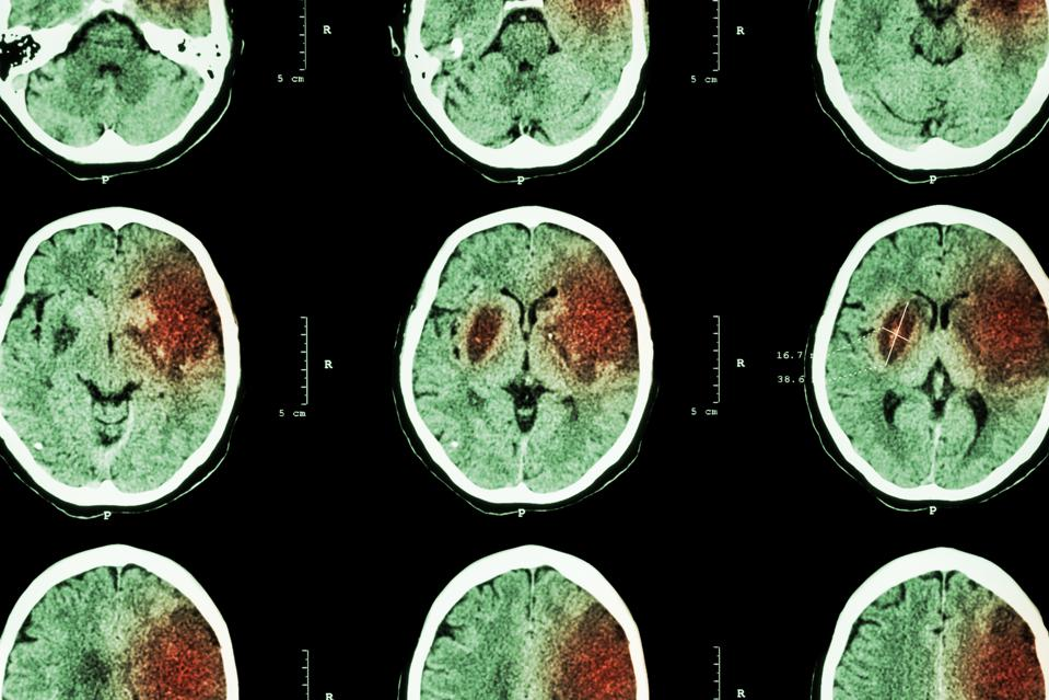 Ischemic stroke, CT scan, brain disease, COVID-19, coronavirus, neurologic symptoms