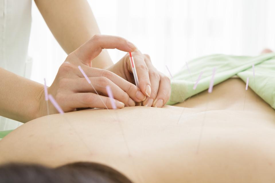 Medicare Will Now Pay For Acupuncture In Part Due To Opioid Abuse