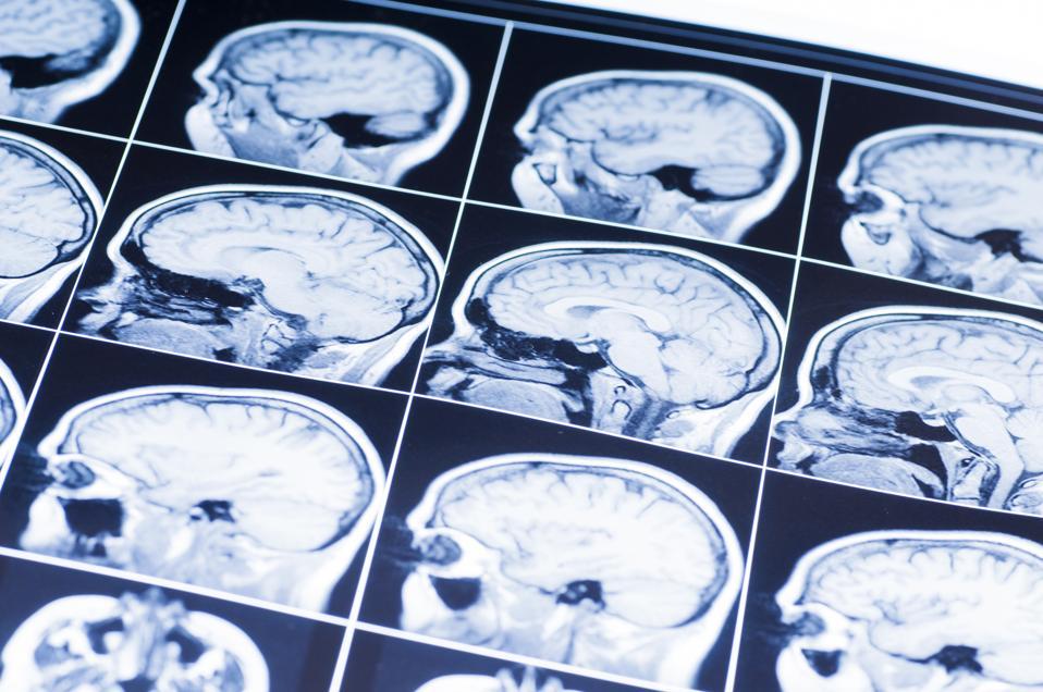 Investors Venture Boldly Into Neuroscience