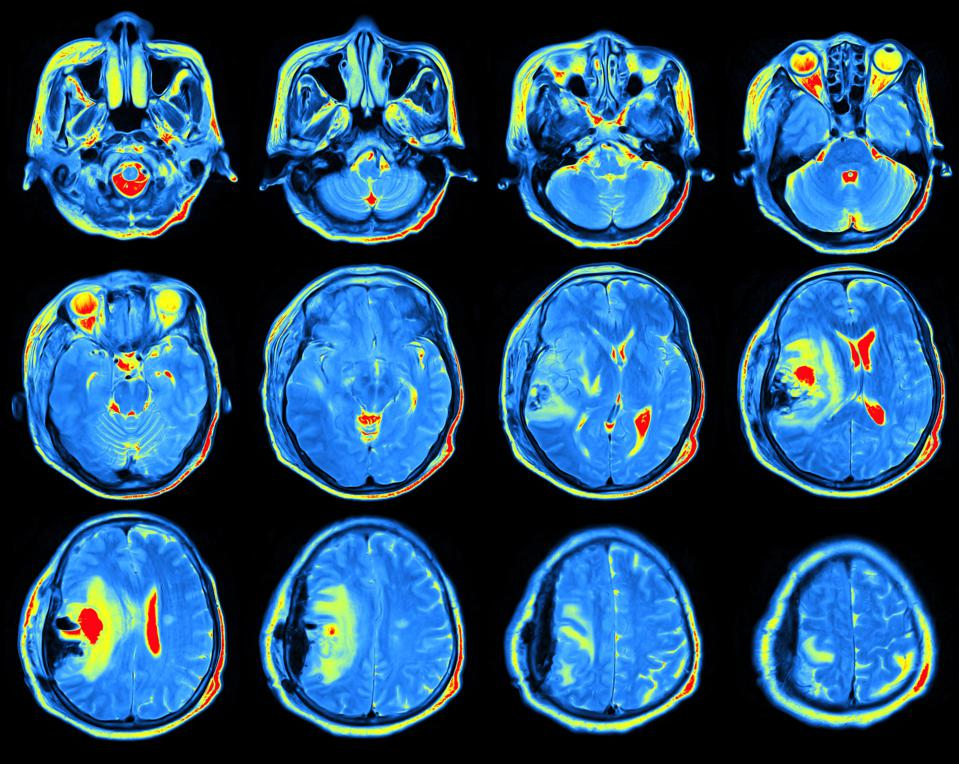 Heart Risk In Middle Age Predicts Brain Plaques In Old Age
