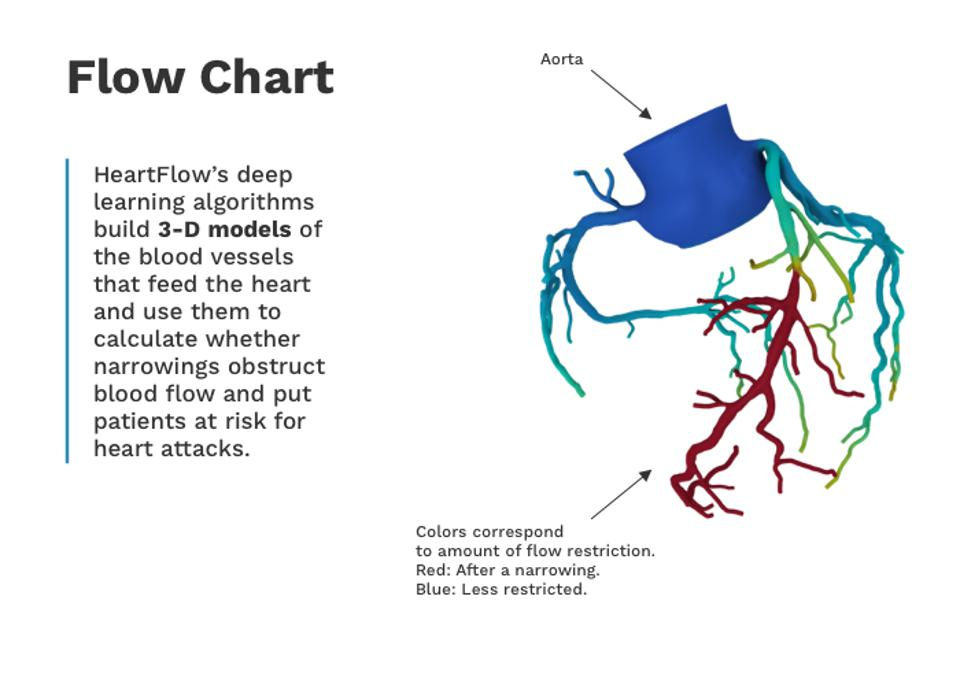 Heartflow Has Raised 500 Million For A Test To Detect Heart Disease
