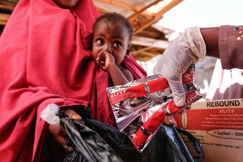 Halima Hassan Mohamed brings her 1-year-old son, Hassan, for treatment of malnutrition at a displacement camp in Somalia.