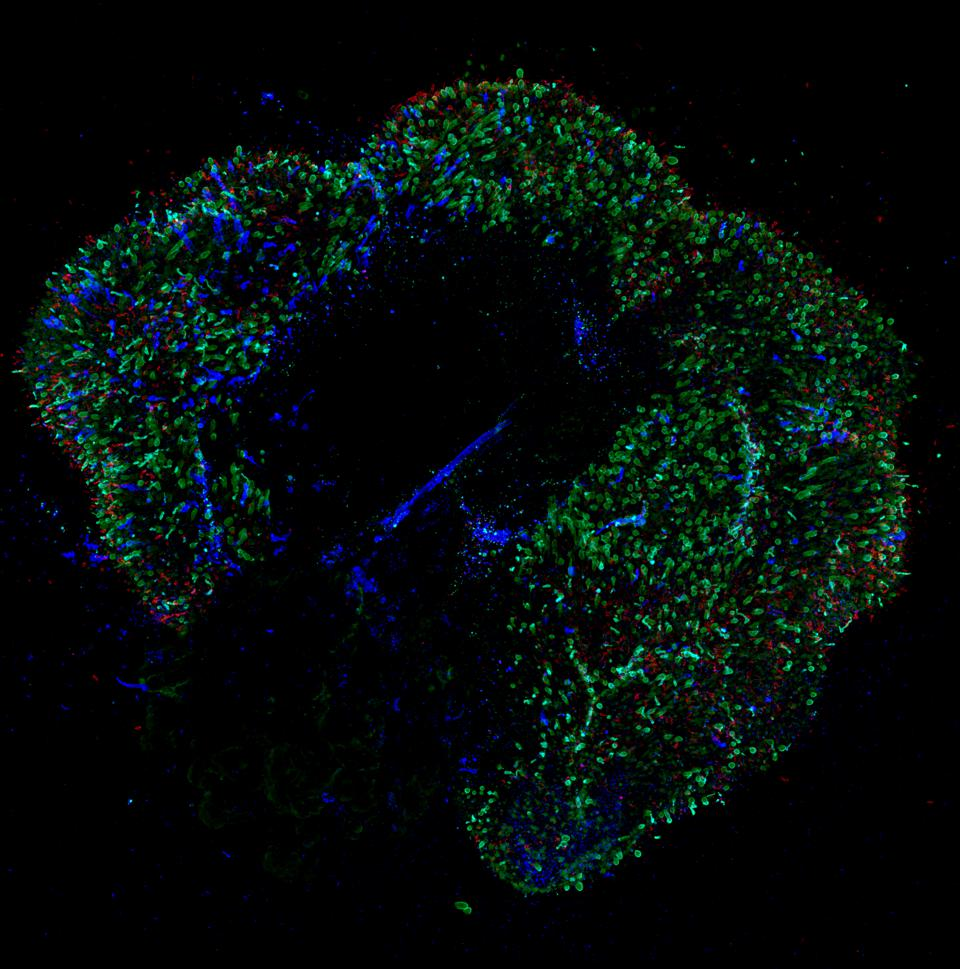 A 291-day-old retina organoid. Red and green cone photoreceptors appear green, blue cone photorectors appear blue, and rod photoreceptors appear red.