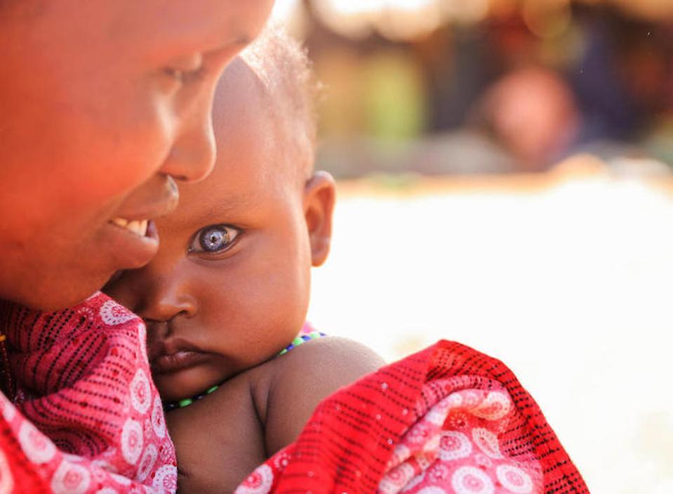 Habiba Biyow Roba, 35, madre de siete hijos, tiene a su hija de 8 meses, Sumeya, cerca de un campamento apoyado por UNICEF para personas internamente desplazadas en la región de Oromia, en Etiopía.