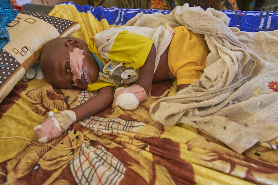 This child is being treated for malnutrition at a UNICEF-supported hospital in Sudan, where food insecurity is widespread.