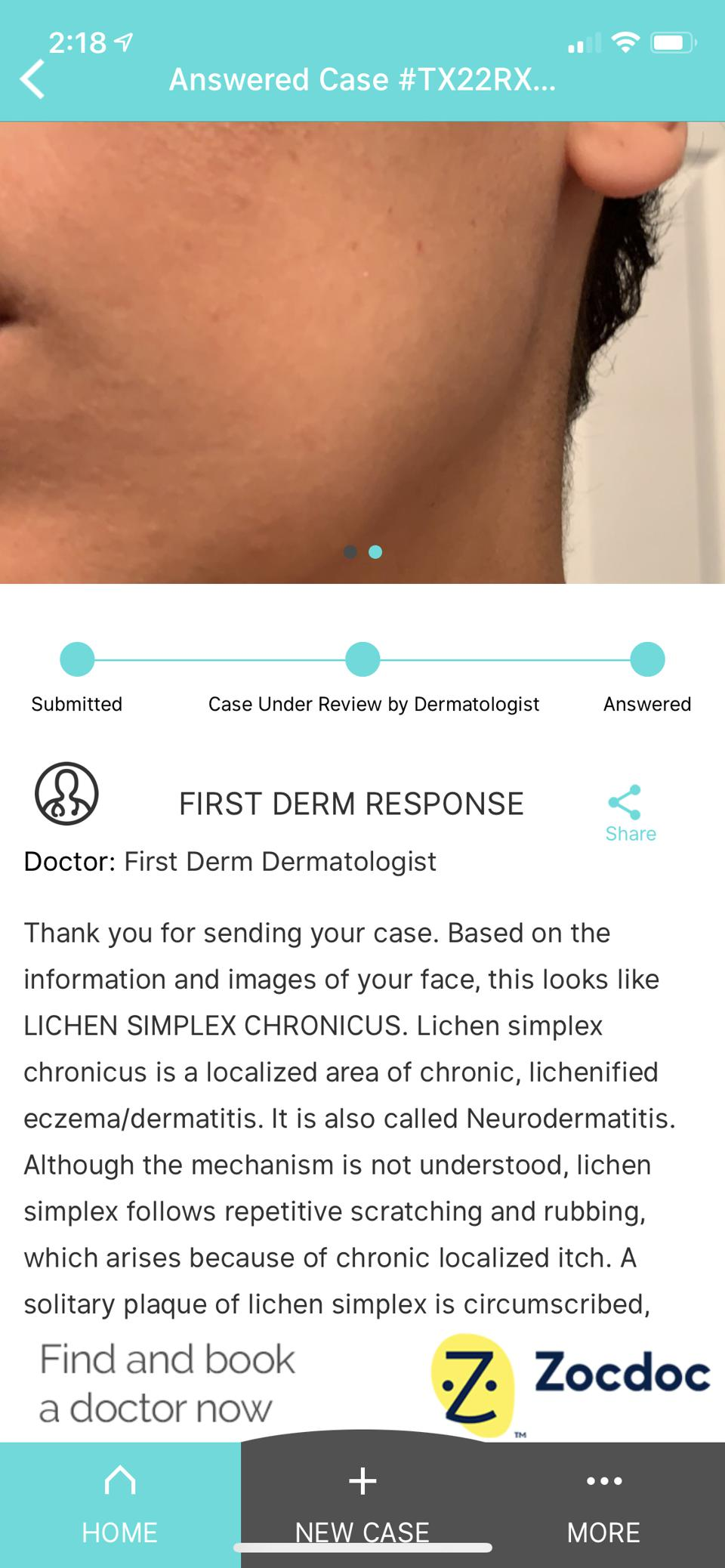 I Used A Virtual Dermatologist App—Here's What Happened