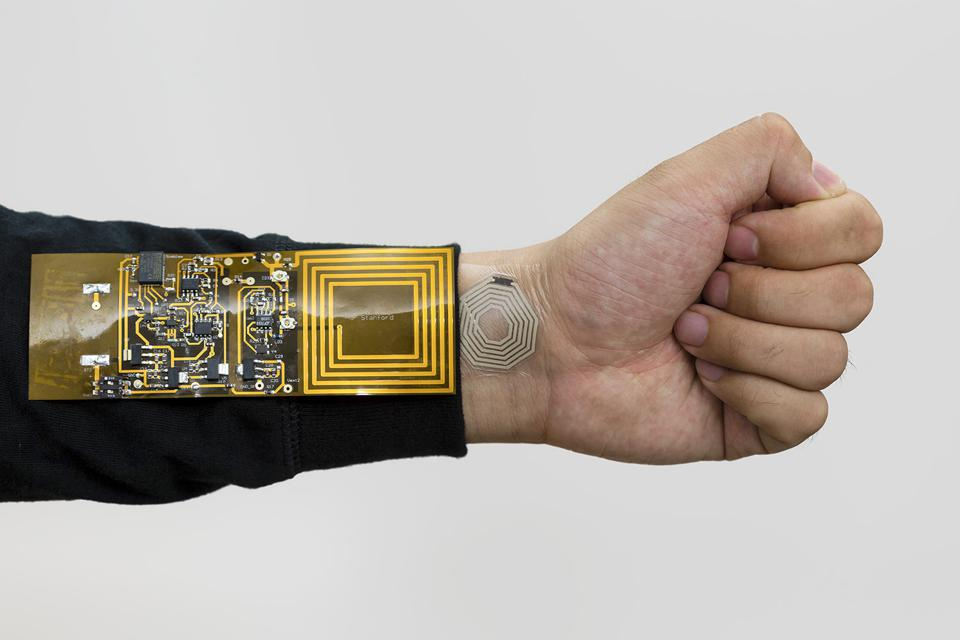 The newly developed stretchable, bendable sensors allow RFID signals to be transmitted along with skin movement