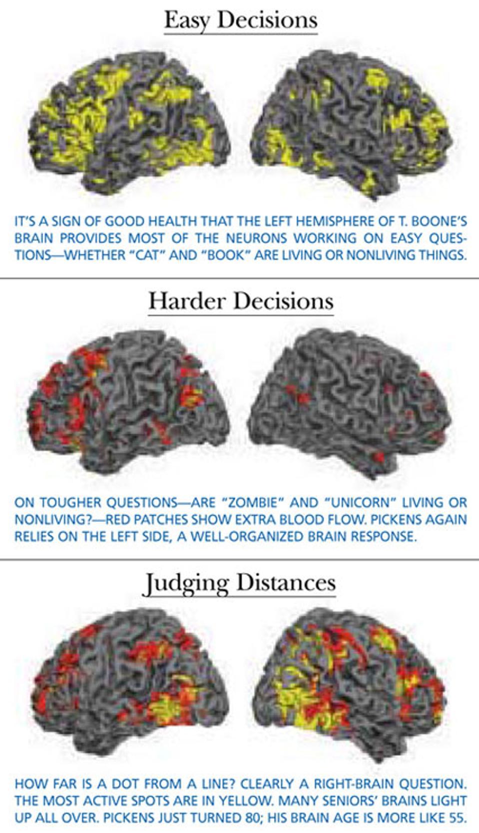 Pickens' brain.