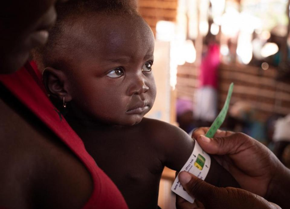 On September 27, 2019, a boy has his mid-upper arm circumference measured by a health worker checking for malnutrition at a UNICEF-supported community outreach medical center near the village of Mecufi in northern Mozambique.