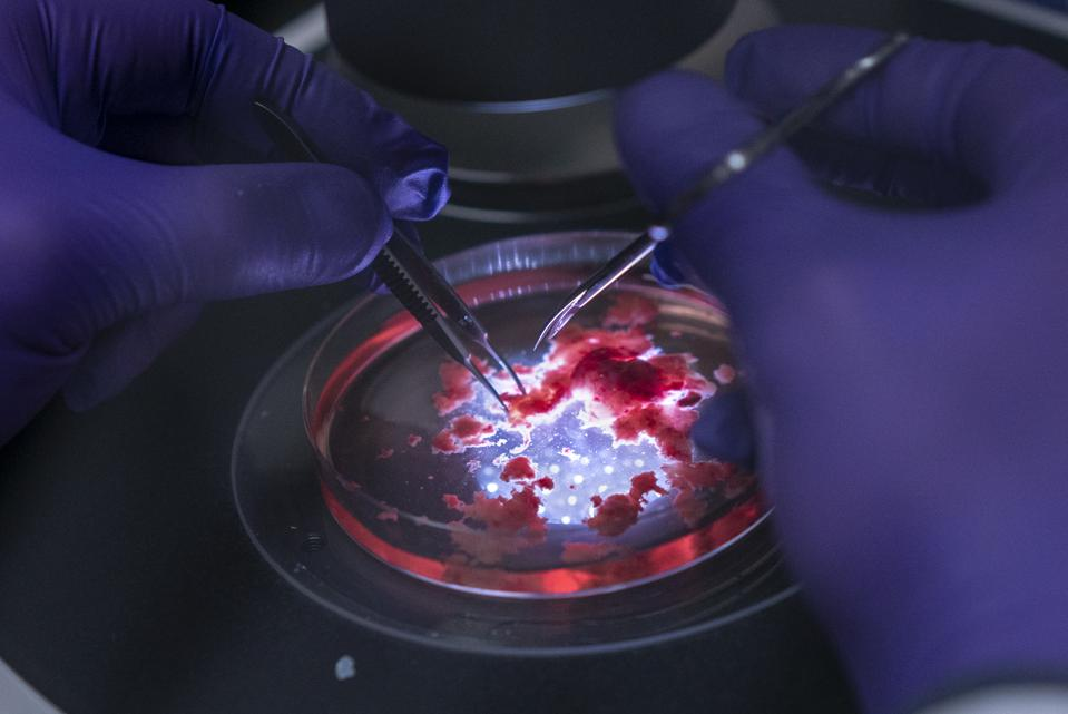 "The Real Story About Organoids: What You Should Know About ""Brains In A Dish"""
