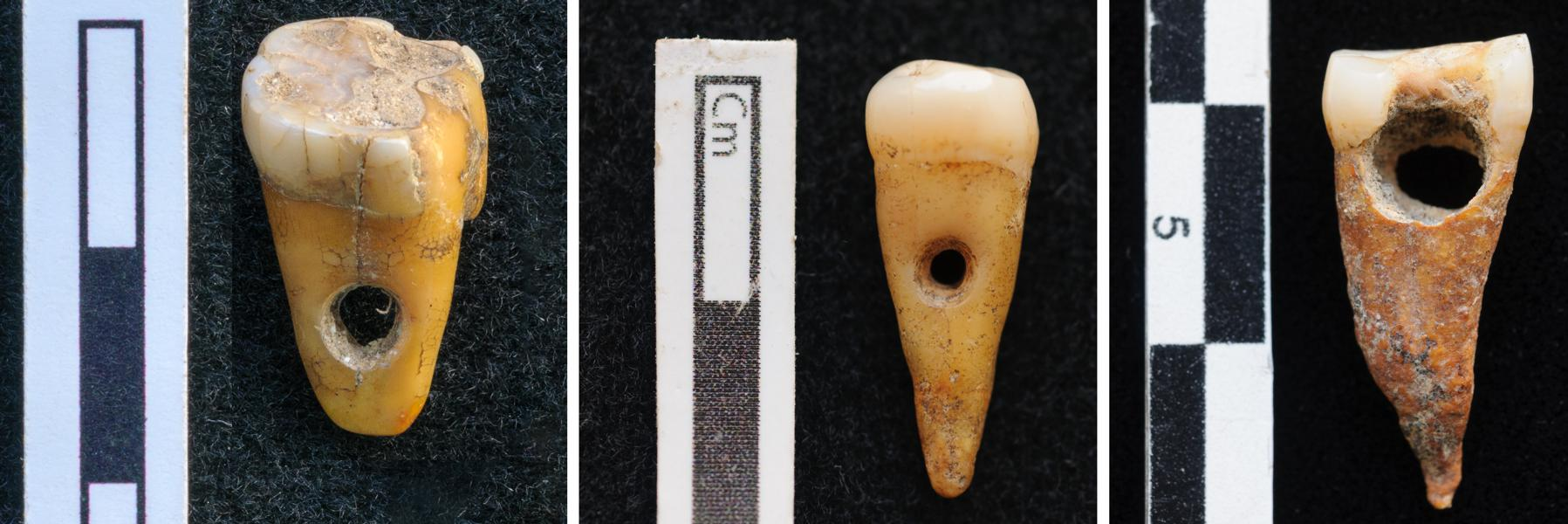 Human Tooth Jewelry Discovered At Neolithic Site In Turkey