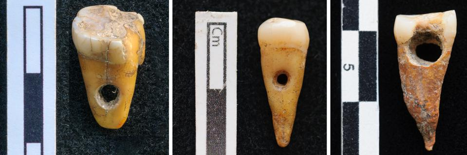 Drilled human teeth from ancient Turkey
