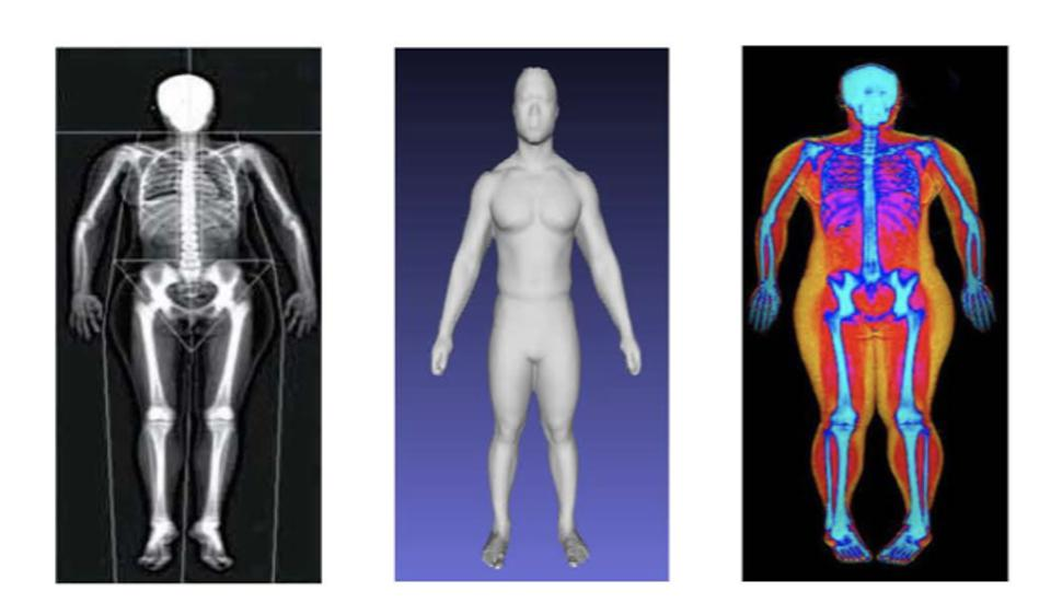 3D optical images are analyzed with AI to measure body composition including fat, lean, and bone mass.