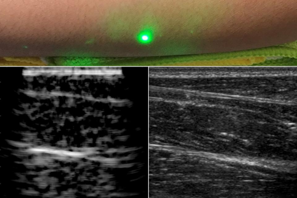This New Laser System Can Take Images Inside Your Body Remotely