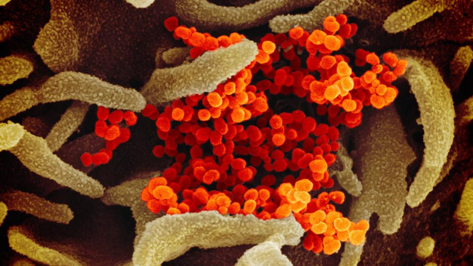 Electron microscope image shows SARS-CoV-2 (orange) emerging from the surface of lab-grown cells (green).