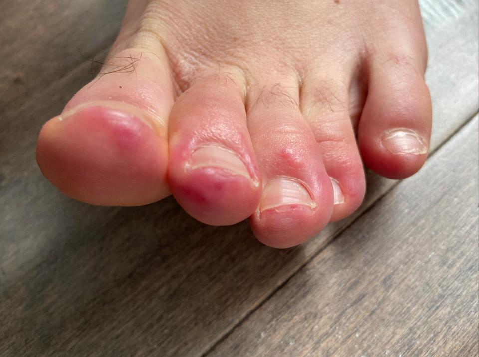 Toes with red spots from Covid19 infection