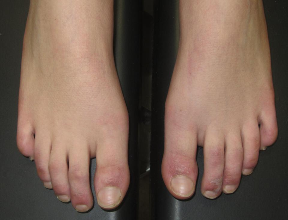 Covid toes with blistered rash