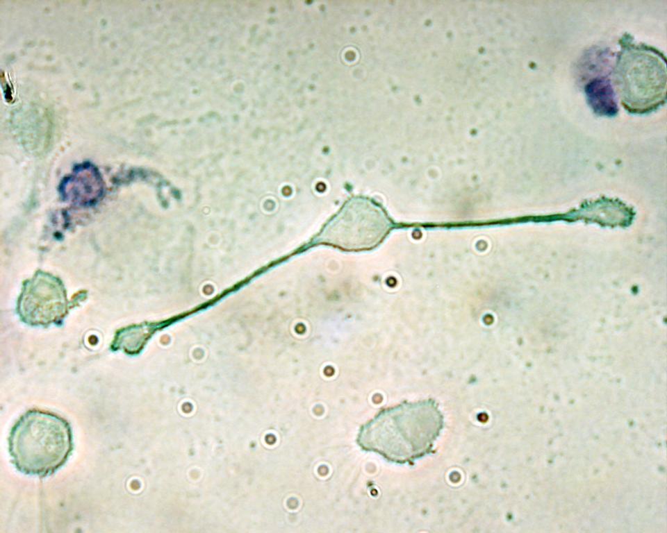4 Macrophage