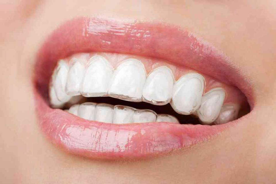 A woman is wearing Invisalign clear aligners on her teeth