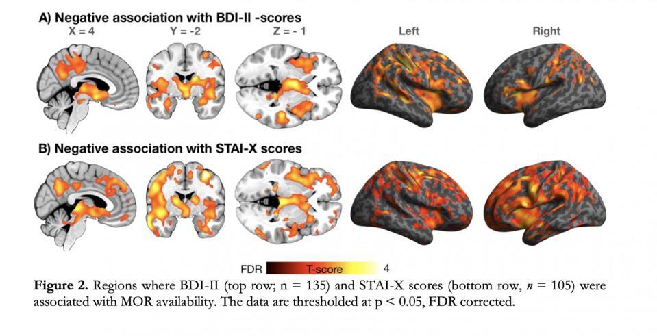 Images of the brain showing lighting up of opioid receptors.