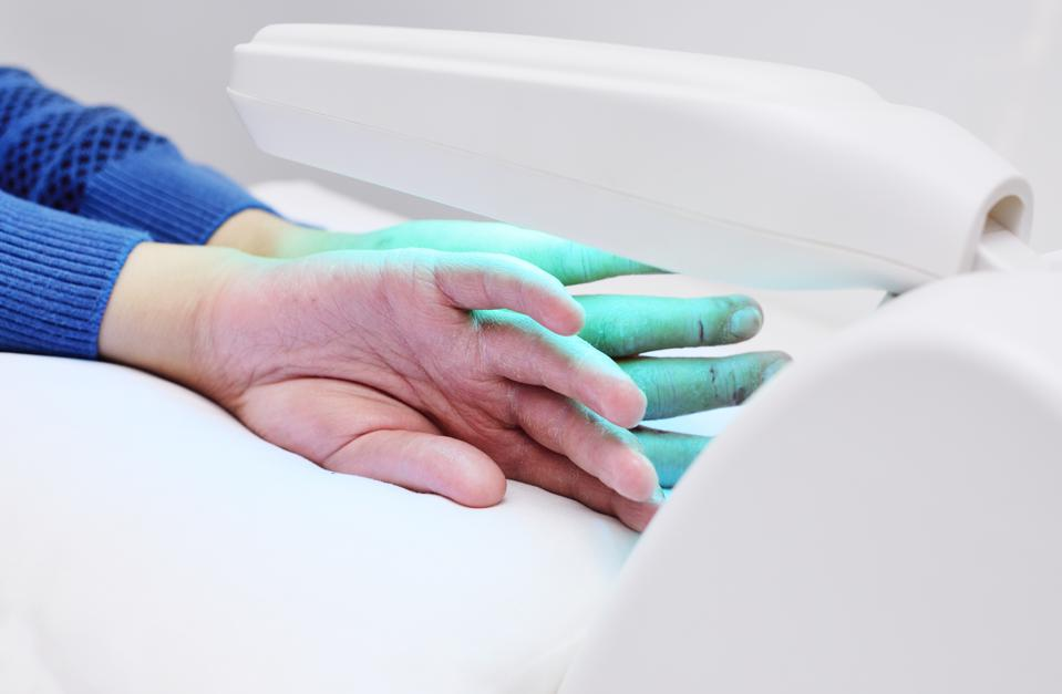 mani di un paziente con psoriasi primo piano sotto una lampada a raggi ultravioletti