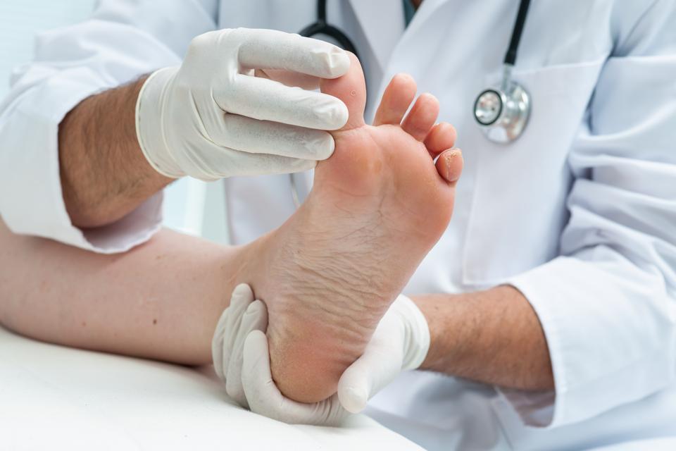 Covid-19, Coronavirus, dita dei piedi covide, pandemia