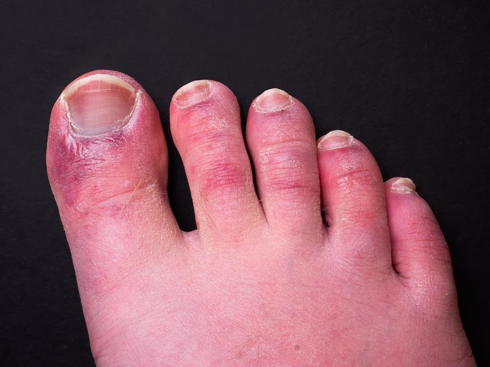 Coronavirus, dita dei piedi covide, Covid-19
