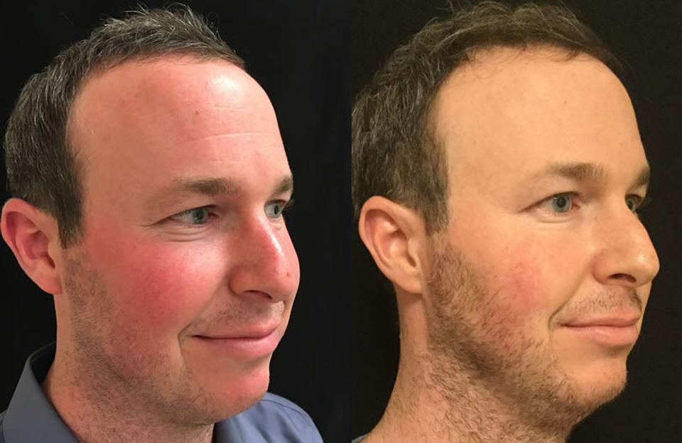 Before & After, 33-year-old Male, 3 VBeam treatments over 3 months