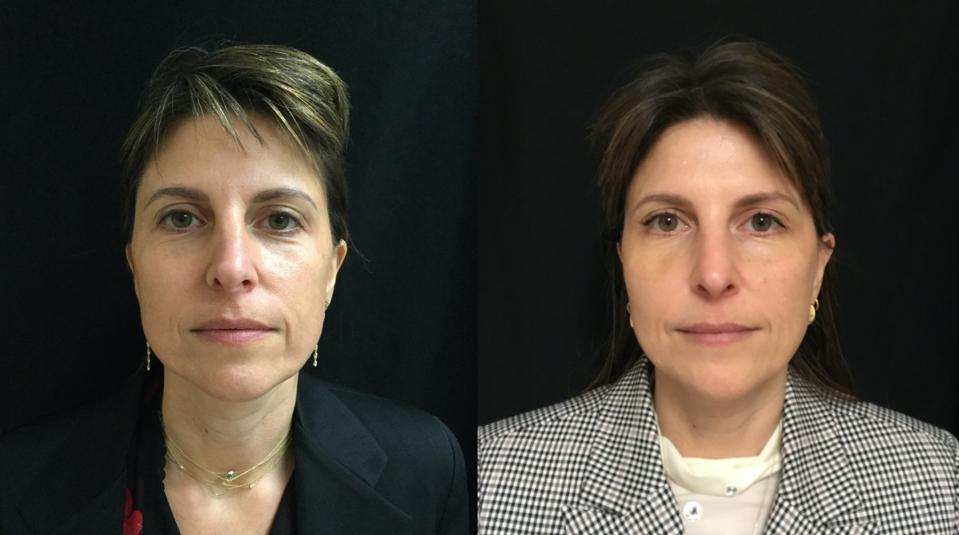 Before & After, 44-year-old, Thermage for skin tightening and Juvederm Volluma and Restylane Lyft for dermal filler.