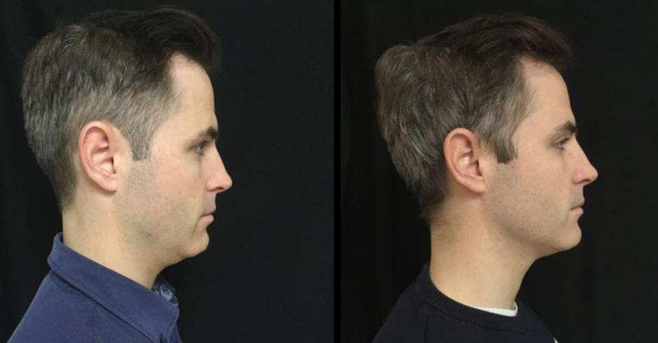 Before & After, 33-year-old Male, 3 Kybella treatments over 3 months.