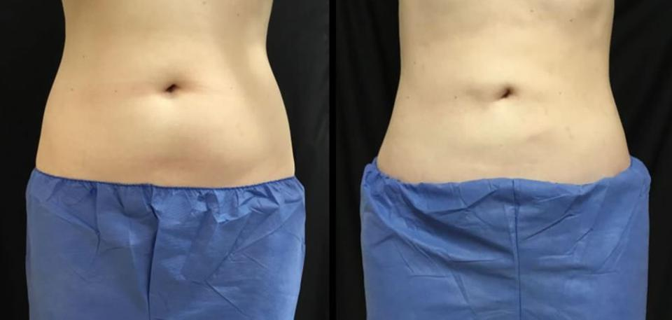 Before & After, 34-year-old, Coolsculpting treatment for abdomen, 4 months later.