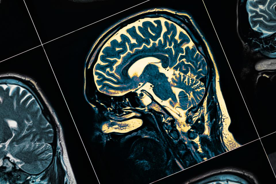 MRI of the patient's head close-up. One picture from the series