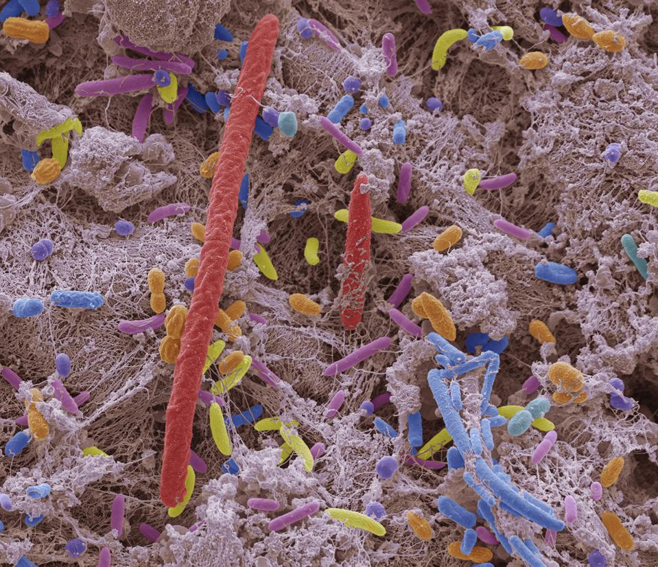 Coloured scanning electron micrograph (SEM) of mixed oral bacteria