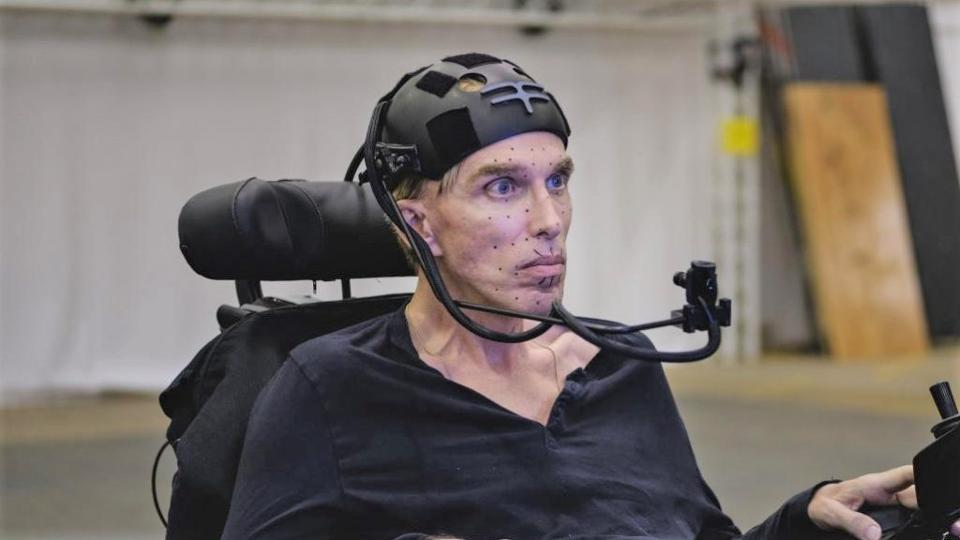 Scientist and roboticist Peter Scott Morgan, who is using an advanced version of Stephen Hawking's communication system, built by Intel.