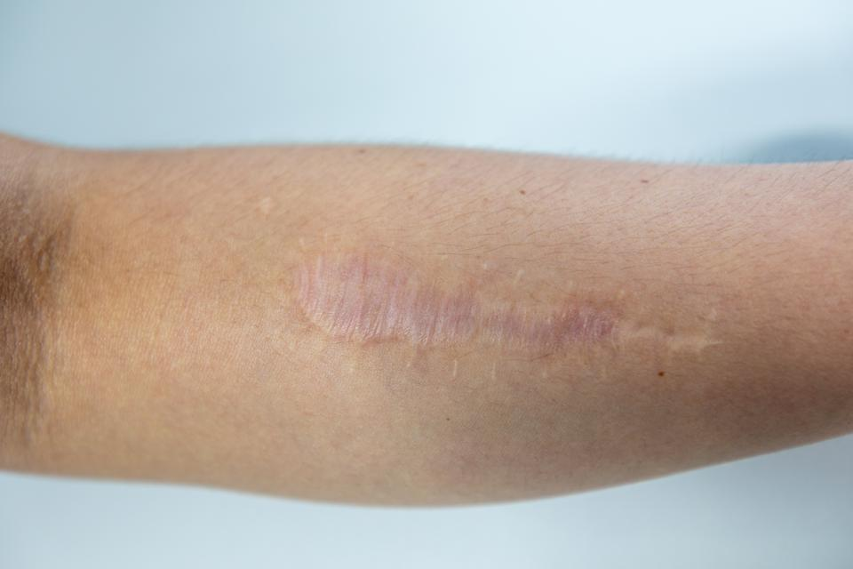 Image showing a healed scar on the side of someone's arm.