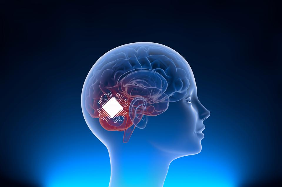 Rendition of a brain implant in a human skull