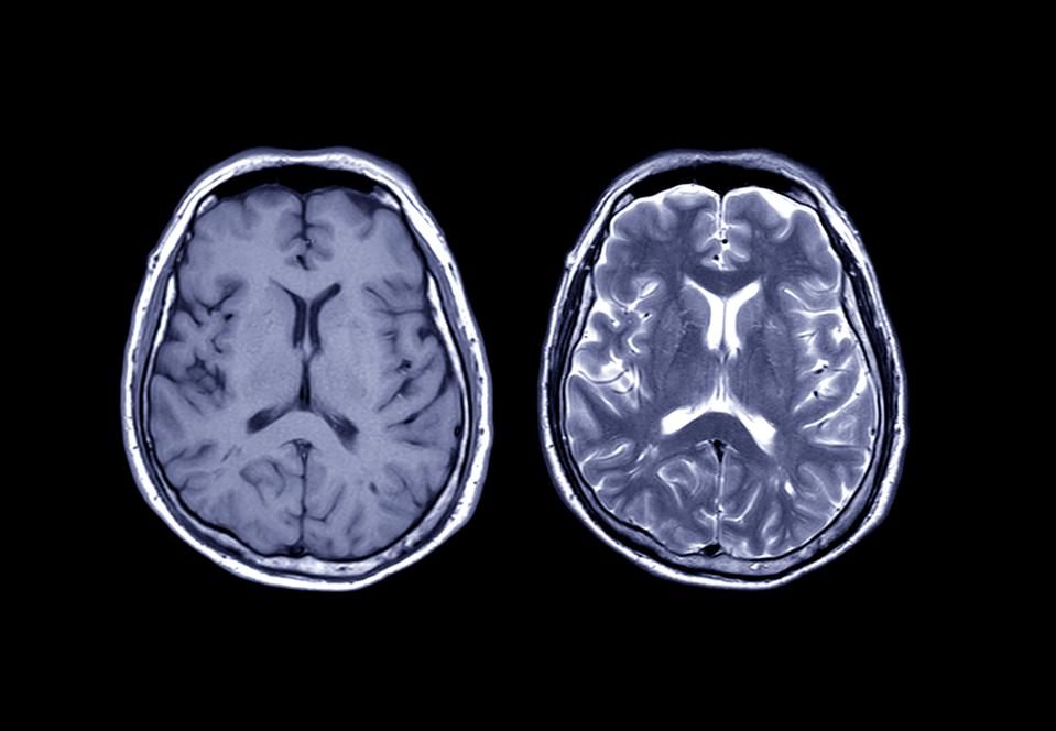 Comparison MRI brain Axial T1 and T2  for detect a variety of conditions of the brain such as cysts, tumors, bleeding, swelling, developmental and structural abnormalities, infections.