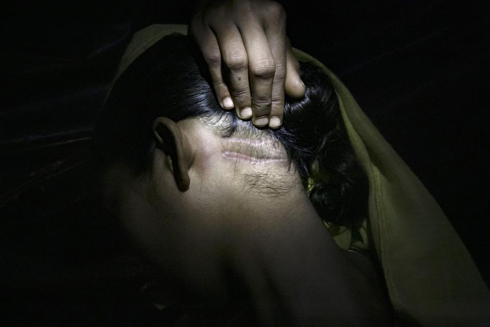 Rohingya Rape Survivors Speak Out At Bangladesh's Refugee Camps