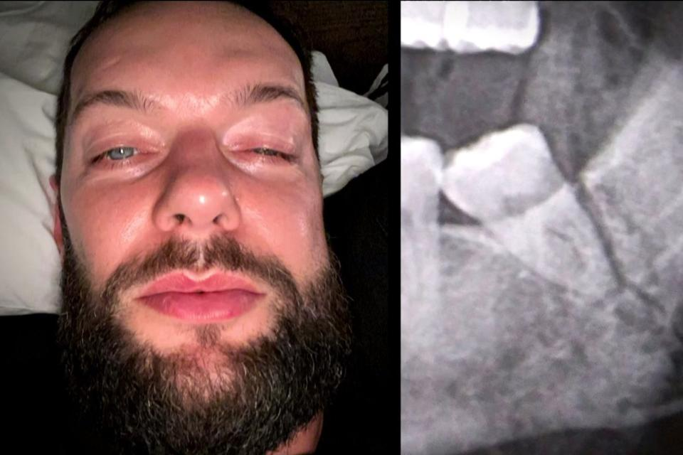 Finn Balor suffered a fractured jaw at WWE NXT TakeOver 31.