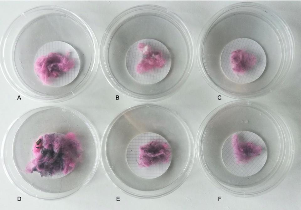 pink fiber captured from dryer exhaust vents in study on microfiber pollution